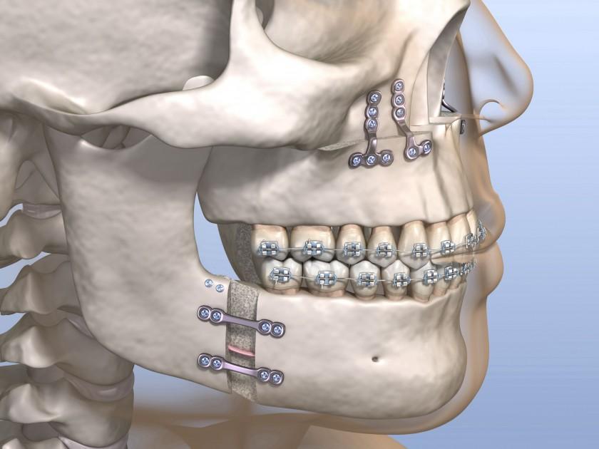 Orthognathics 6